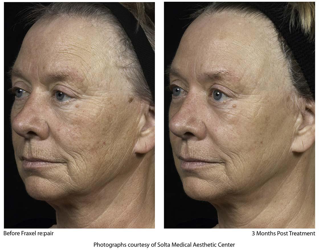 Fraxel Skin Resurfacing Treatments