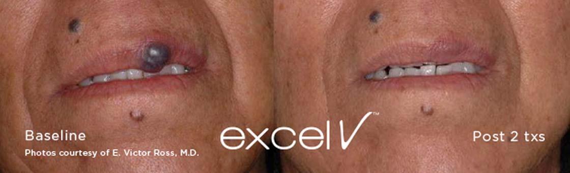 Excel V Laser Treatment